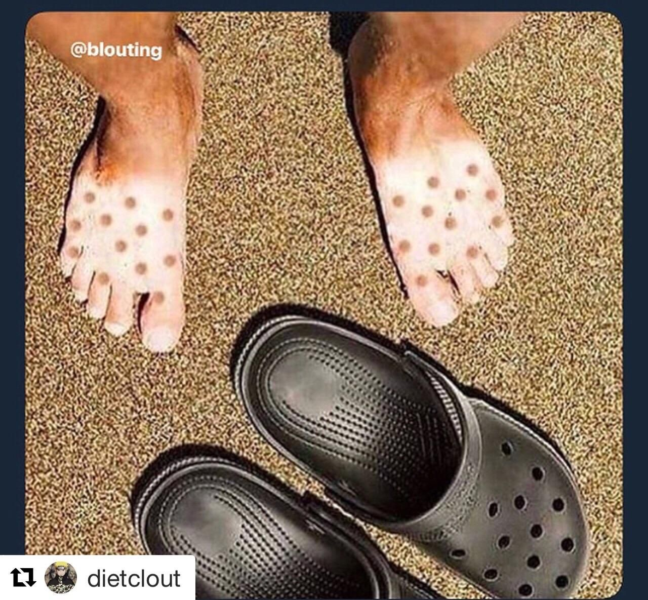 Don't wear crocs in the sun