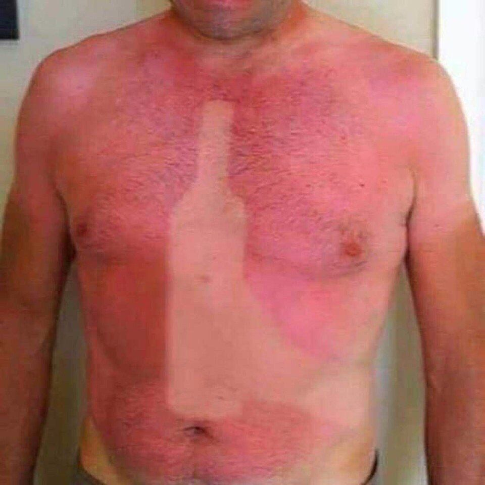 Best sunburn ever