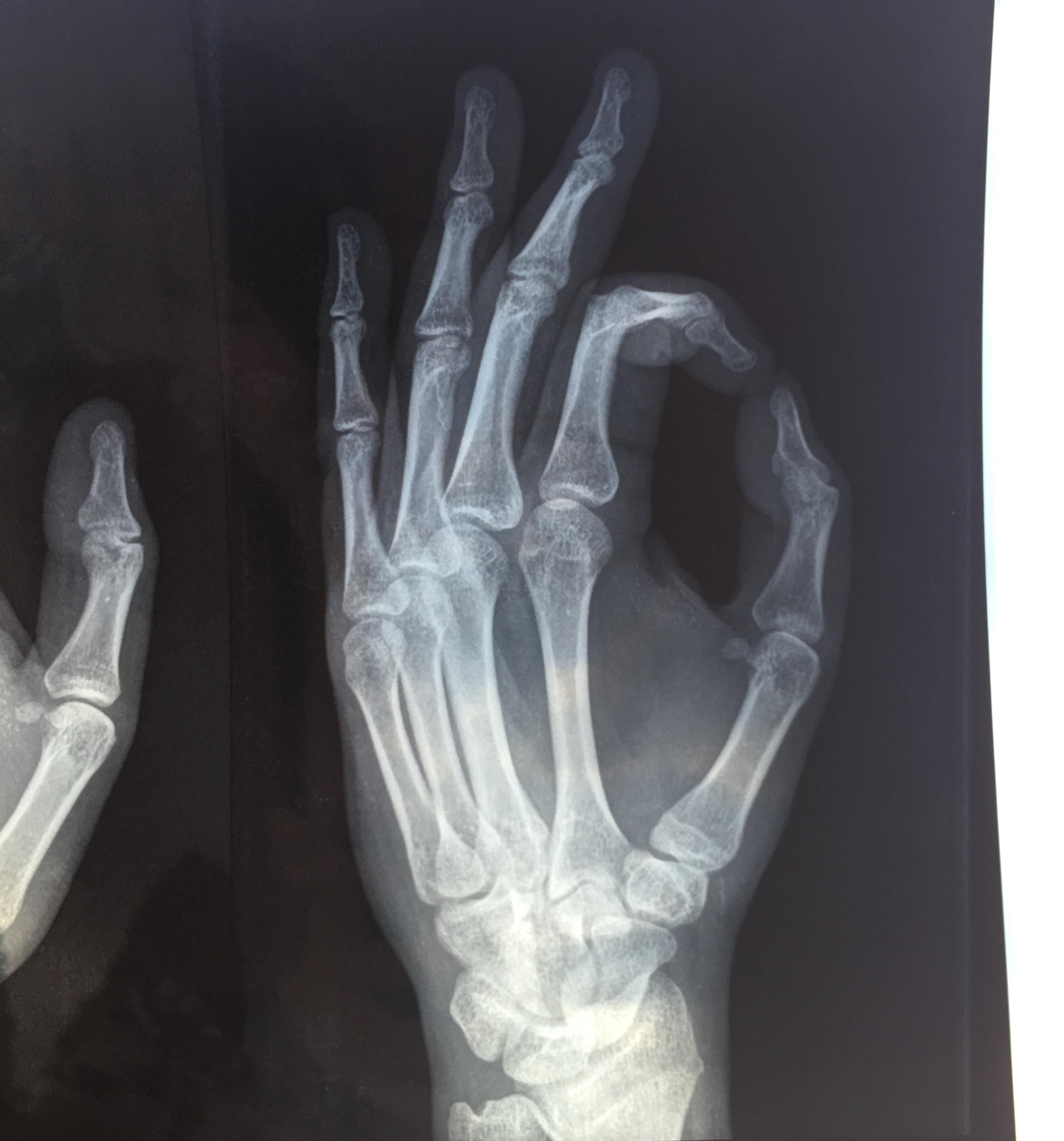 My friend fractured his thumb, then sent me this... he got me good
