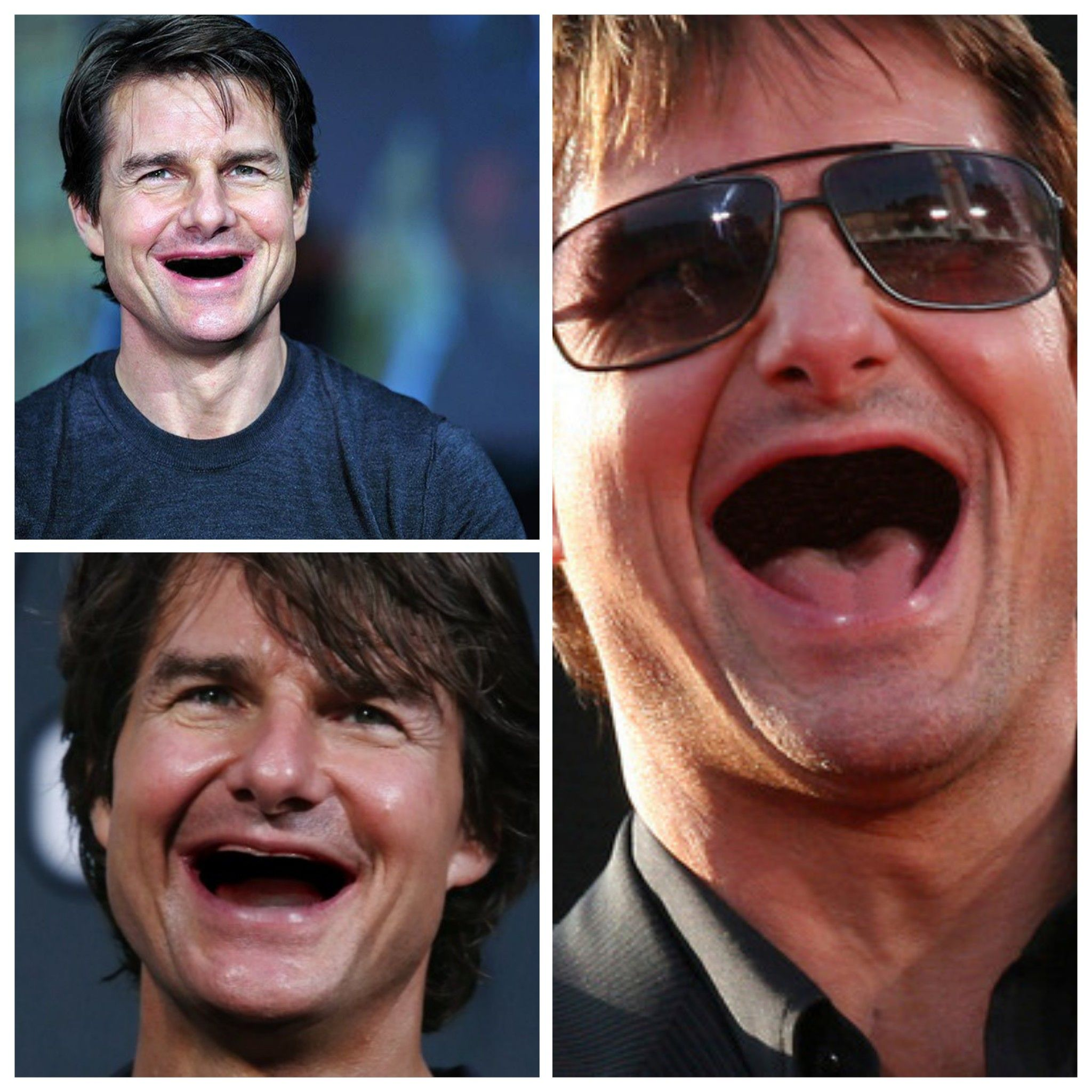 Tom Cruise without teeth