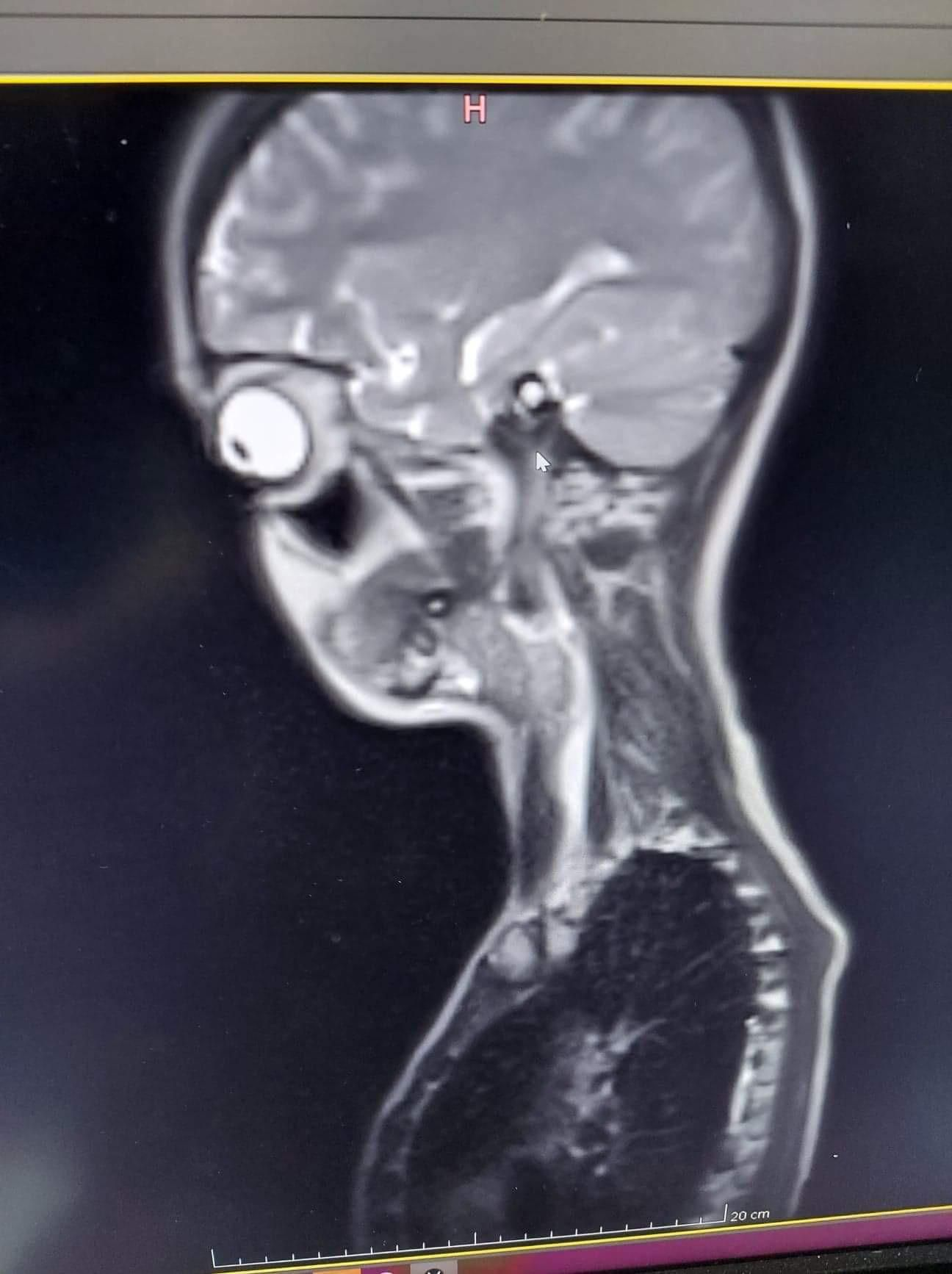 This picture of my MRI
