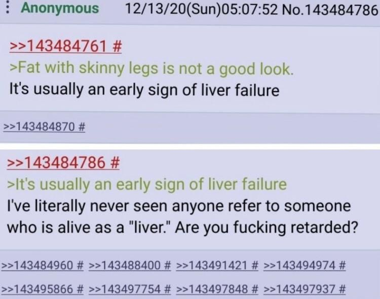 Anon is a retard