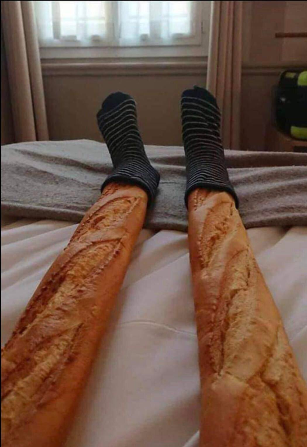 French soldier recovering in hospital after severe burns in both legs, 1943, colorized