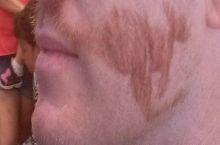 Movember, Australian way